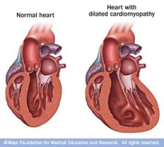 mcdc7_dilatedcardiomyopathy