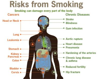 SmokeCancer