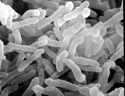 Corynebacteriumdiphteriae